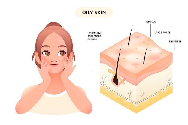 Ilustracja gradientu tłustej skóry z kobietą