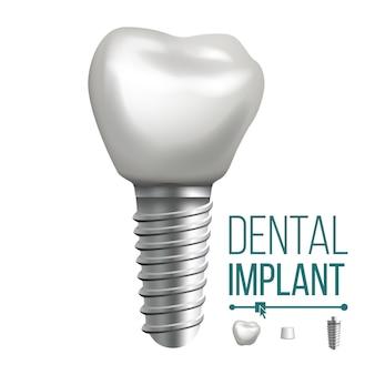 Ilustracja implantu dentystycznego