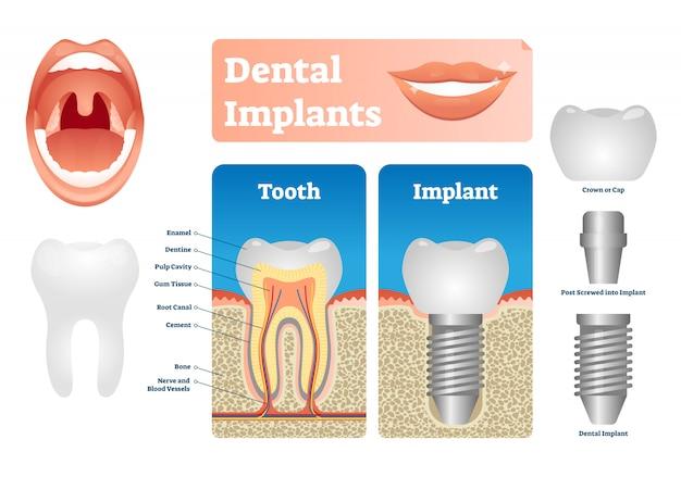 Ilustracja implanty dentystyczne. oznaczony schemat medyczny z nakładką na zęby.