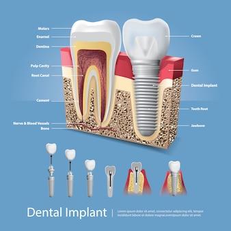 Ilustracja ludzkich zębów i implantu dentystycznego