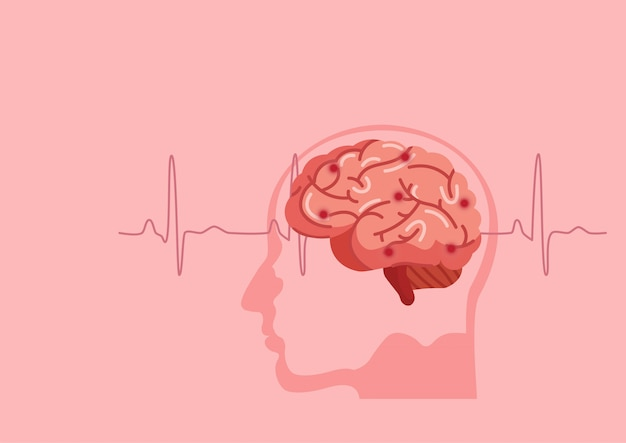 Ilustracja udar mózgu człowieka.