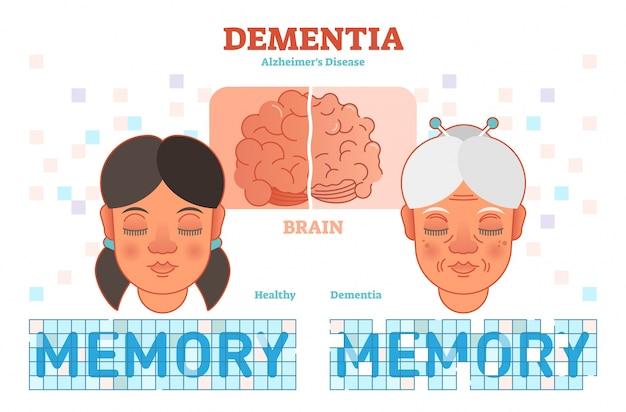 Ilustracja wektorowa koncepcja choroby alzheimera
