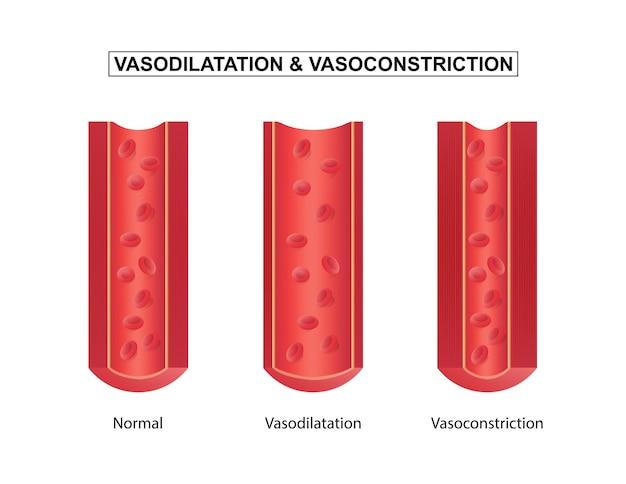 Ilustracja wektorowa prawidłowe rozszerzenie naczyń krwionośnych i zwężenie naczyń krwionośnych