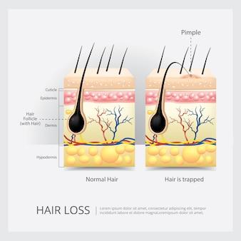 Ilustracja wektorowa utraty struktury włosów