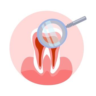Ilustracja ząb i szkło powiększające