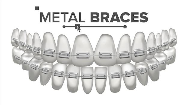 Ilustracja zębów z metalowymi nawiasami klamrowymi