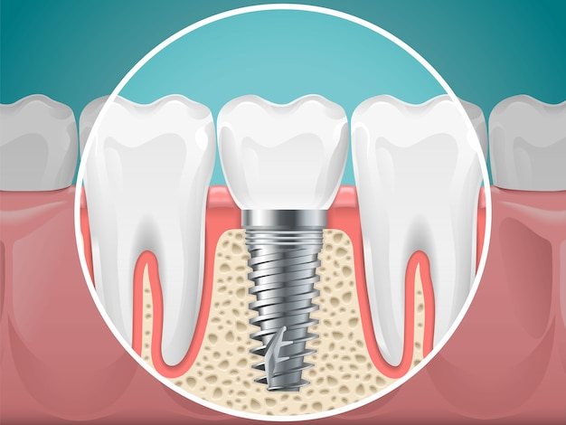 Ilustracje stomatologia. implanty zębowe i zdrowe zęby. wektor ząb zdrowia i implantologia stomatologia, instalacja stomatologiczna i osprzęt