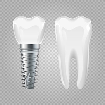 Implant dentystyczny. realistyczny zdrowy ząb i implant. elementy chirurgii stomatologicznej