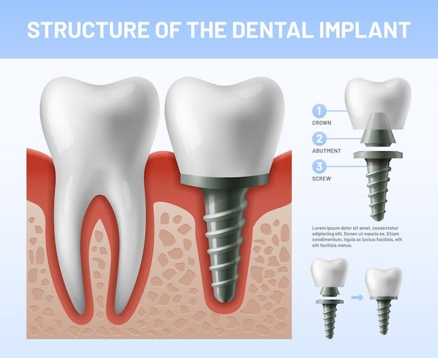 Implant zębów dentystycznych. procedura implantacji lub łączniki korony zęba. ilustracja opieki zdrowotnej