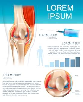 Infograficzna metoda leczenia reumatoidalne zapalenie stawów