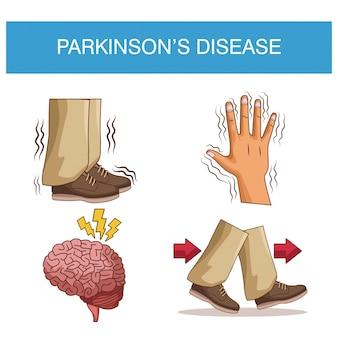 Infografika choroby parkinsona