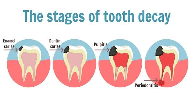 Infografika etapów próchnicy. ilustracja zęba z próchnicą, zapaleniem miazgi i zapaleniem przyzębia