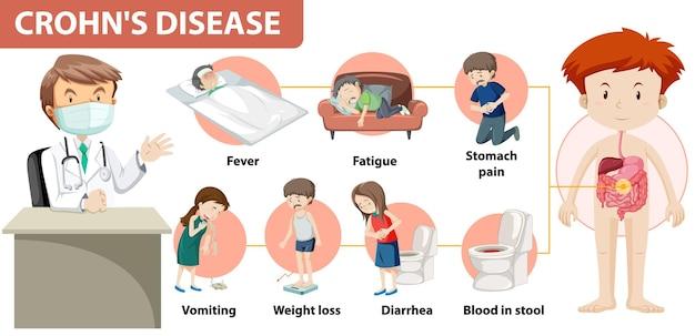 Infografika medyczna choroby leśniowskiego-crohna