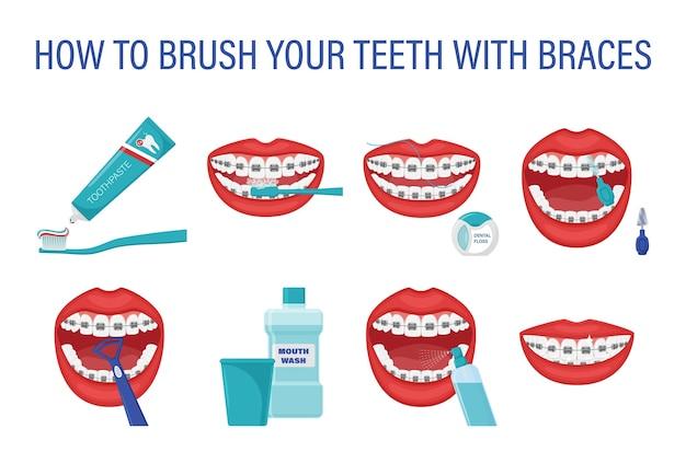 Infografika o tym, jak myć zęby aparatem ortodontycznym. instrukcje krok po kroku dotyczące pielęgnacji jamy ustnej.