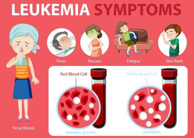 Infografika stylu cartoon objawy białaczki