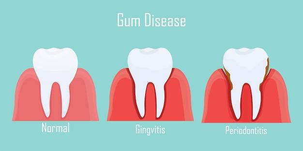Infografika zębów choroba dziąseł w stadiach zapalenia dziąseł