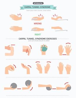 Infografika zespołu cieśni nadgarstka