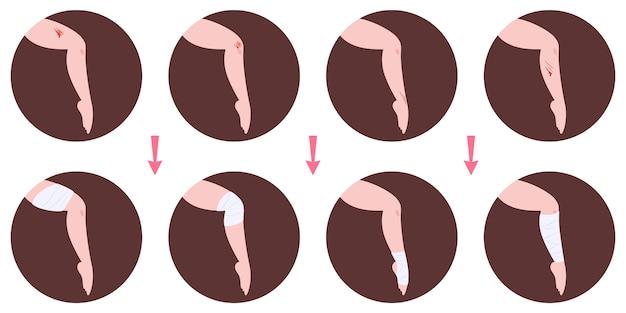 Infografiki leczenia ran i stosowania bandaży. pierwsza pomoc