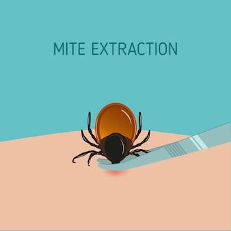 Jak usunąć pasożyta roztocza. znak ostrzegawczy kleszcza zapalenia mózgu.