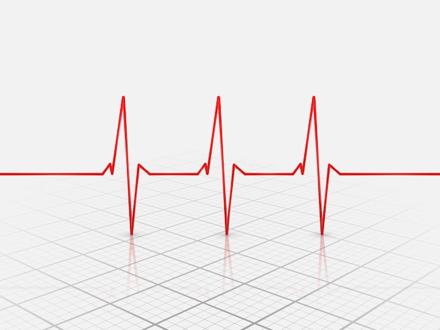 Kardiogram serca