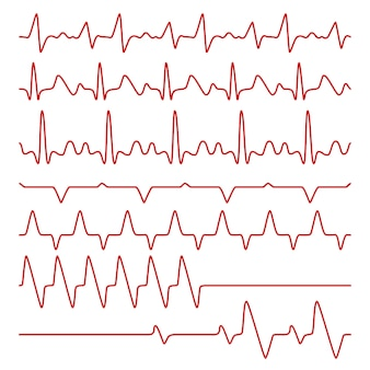 Kardiogramy liniowe lub elektrokardiogram na monitorze