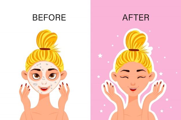 """Kobieca postać """"przed"""" i """"po"""" maseczka kosmetyczna. styl kreskówki. ilustracja."""