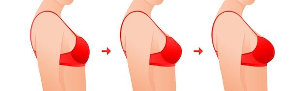 Kobiece piersi w staniku przed i po powiększeniu koncepcja chirurgii plastycznej
