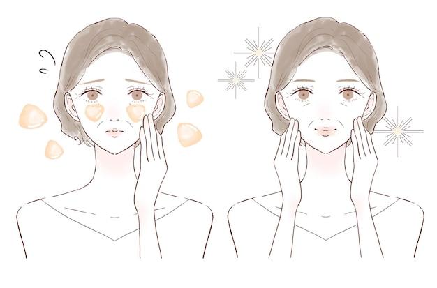 Kobieta w średnim wieku cierpiąca na tłustą cerę. przed i po. na białym tle.