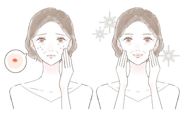 Kobieta w średnim wieku, która dba o bikibi. przed i po.na białym tle.