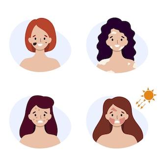 Kobiety z różnymi chorobami skóry. objawy oparzenia słonecznego i alergii na twarzy.