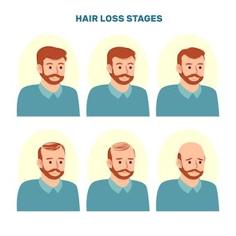 Kolekcja etapów wypadania włosów rysowane ręcznie