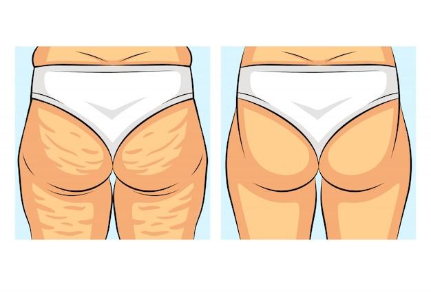 Kolor ilustracji wektorowych przed i po utracie wagi. widok z tyłu dziewczyny. kobieca figura z cellulitem i bez. złogi tłuszczu na ciele kobiety. obszary problemowe kobiecych pośladków.