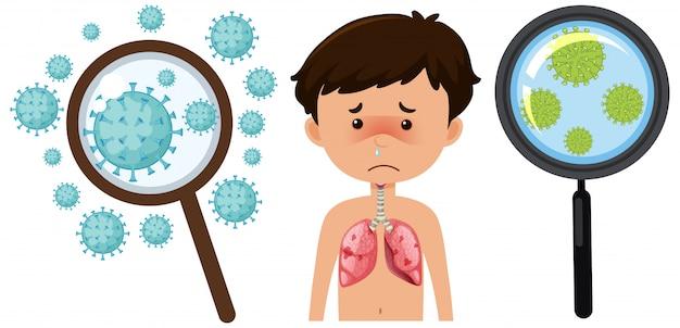 Komórka koronawirusa i chory chłopiec na białym tle