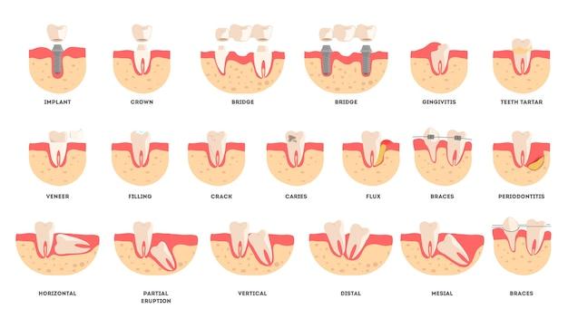 Komplet zębów ludzkich w innym stanie. koncepcja zdrowia i choroby jamy ustnej. idea zdrowia jamy ustnej i leczenia. ilustracja