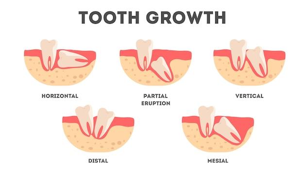 Komplet zębów ludzkich w różnym stanie wzrostu. ząb rośnie w niewłaściwy sposób. idea zdrowia zębów i leczenia. ilustracja