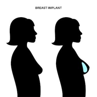 Koncepcja implantu piersi