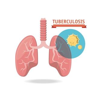 Koncepcja projektu gruźlicy