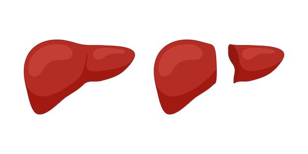 Koncepcja przeszczepu wątroby dawcy prawego płata żywego. koncepcja operacji przeszczepu narządów zewnątrzwydzielniczych ludzkiego gruczołu. płaskie ilustracji wektorowych