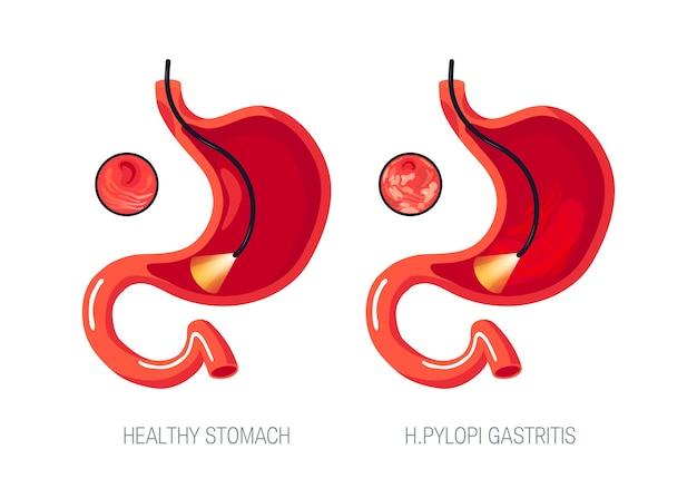 Koncepcja zapalenia żołądka. żołądek z zapaleniem błony śluzowej żołądka i zdrowy.
