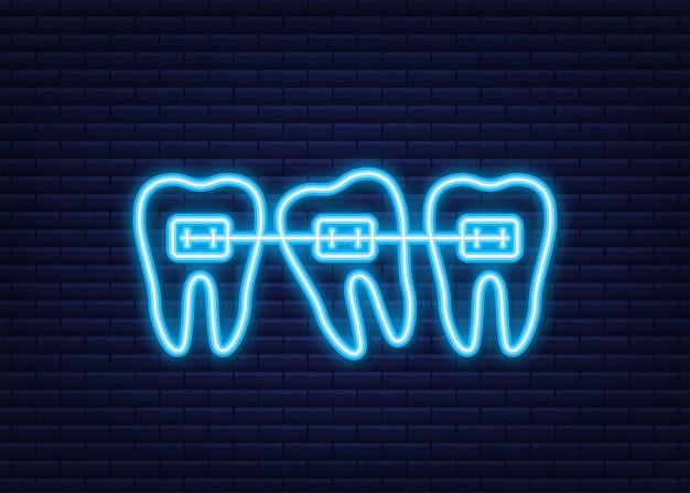 Korekcja zębów aparatami ortodontycznymi. etapy wyrównania zębów. usługi kliniki dentystycznej. neonowy styl. ilustracja wektorowa.