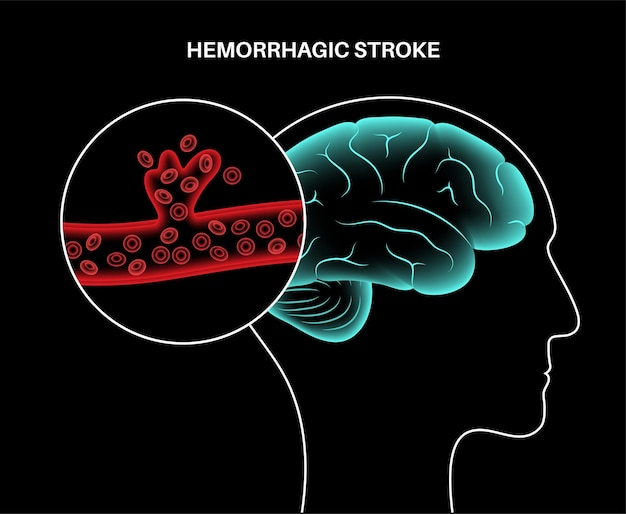 Krwotoczny udar mózgu