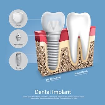 Ludzcy zęby i stomatologiczna wszczepu wektoru ilustracja