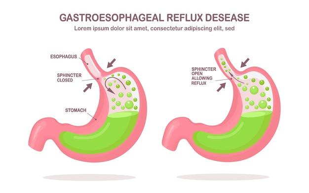 Ludzki żołądek. choroba refluksowa przełyku. gerd, zgaga, infografika żołądka. kwas przedostaje się do przełyku.