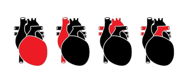 Ludzkie serce z czerwonymi wybranymi częściami. anatomicznie poprawna izolacja narządów na białym tle.