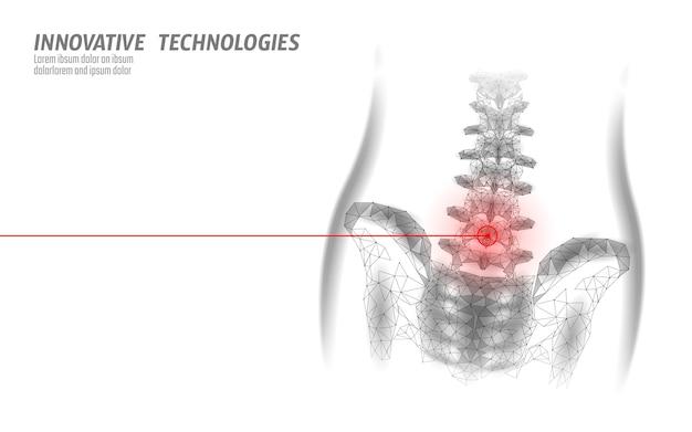 Ludzkie zapalenie kręgosłupa lędźwiowego biodra ból kręgosłupa niski poli.