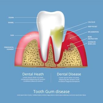 Ludzkie zęby etapy choroby dziąseł ilustracja