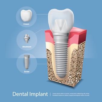 Ludzkie zęby i implant dentystyczny ilustracja