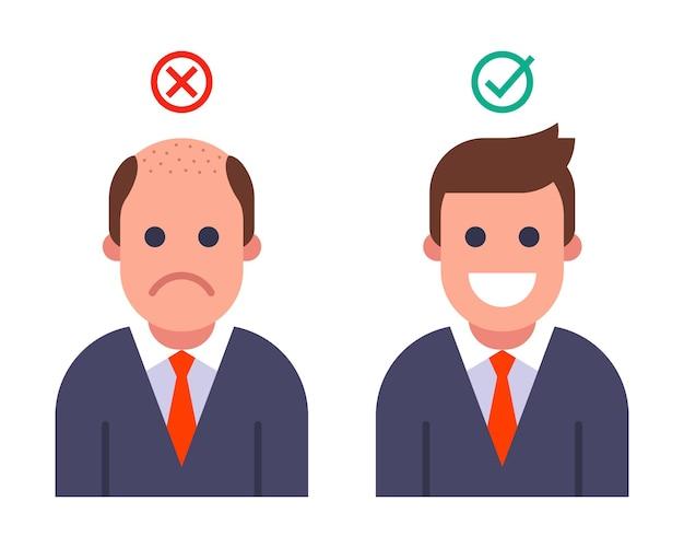 Łysy mężczyzna przeszczepione włosy, wynik przed i po przeszczepie włosów