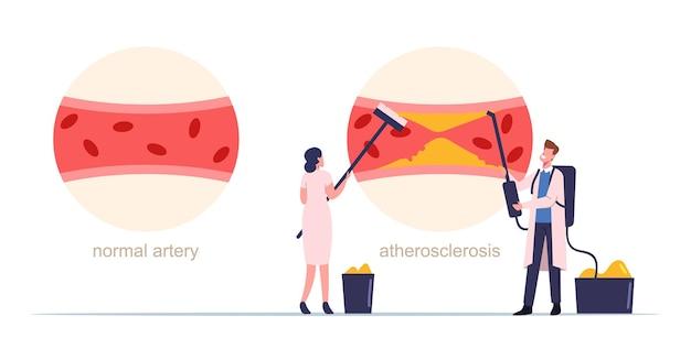 Małe postacie medyków oczyszczające tętnice krwi ludzkiej z tworzenia się płytki cholesterolowej