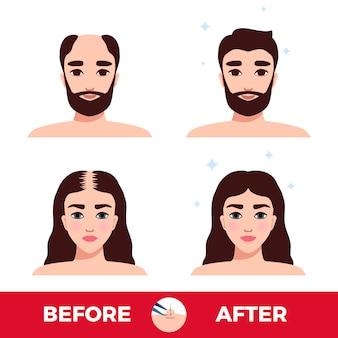 Mężczyzna i kobieta przed i po przeszczepie włosów na białym tle